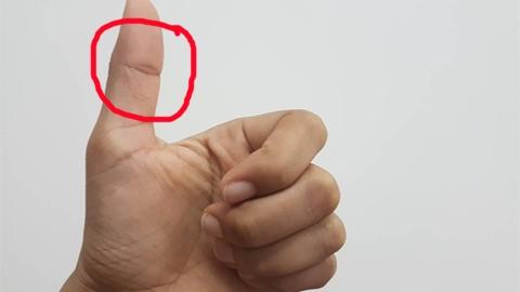หัวนิ้วมือด้านซ้ายใครเป็นแบบนี้ ว่ากันว่ามีพลังงานพิเศษ