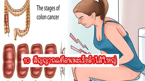 อย่าละเลย!! 10 สัญญาณเตือนมะเร็งลำไส้ใหญ่