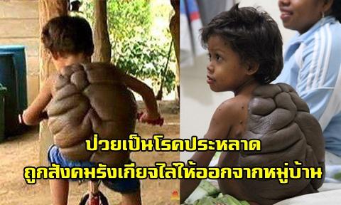 แพทย์ศัลยกรรมฯอังกฤษ เข้าช่วยเด็กกระดองเต่า หลังถูกสังคมรังเกียจเนื่องเกิดมาผิดปกติ !!