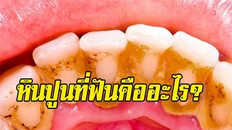 หินปูนที่ฟันคืออะไร? เกิดจากไหนกันนะ มาทำความรู้จักคราบหินปูน