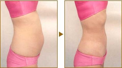 ลดพุงใน 3 วันด้วยเมนูไดเอทง่ายๆ สลายความอ้วน!