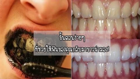 ขั้นตอนง่ายๆ ที่ช่วยให้ฟันของคุณกลับมาขาวน่ามอง!