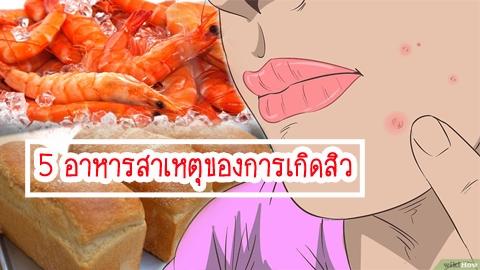 กินเยอะไม่ดี!! 5 อาหารสาเหตุของการเกิดสิว