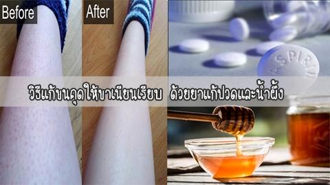 วิธีแก้ขนคุดให้ขาเนียนเรียบ ด้วยยาแก้ปวดและน้ำผึ้ง