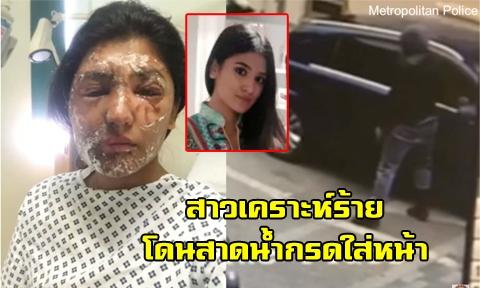 สาวเหยื่อ ถูกคนร้ายสาดน้ำกรดใส่หน้าเสียโฉม แต่โชคดีหมอช่วยได้ ล่าสุดเธอสวยมาก !!!