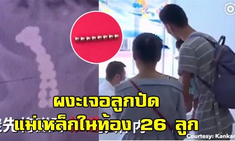 เด็กชาย 11 ขวบ อวัยวะเพศบวม-ปัสสาวะเป็นเลือด ตรวจร่างกายผงะ พบแม่เหล็กในกระเพาะปัสสาวะ 26 ลูก !!!