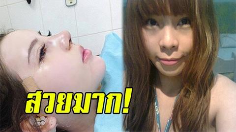 สวยมาก!! สาวเวียดนามศัลยกรรมพลิกชีวิต ไม่น่าเชื่อว่าคือคนเดียวกัน