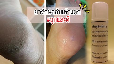 [รีวิว]ยารักษาส้นเท้าแตก ราคาแค่ 60 บาท #ถูกและดี