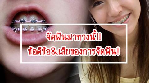 จัดฟันมาทางนี้!! ข้อดีข้อ&เสียของการจัดฟัน!
