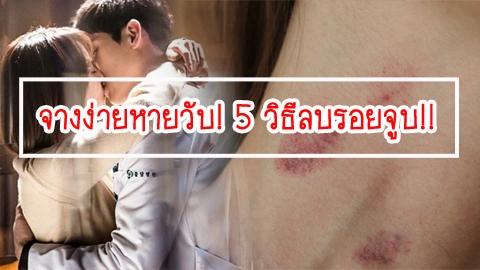 จางง่ายหายวับ! 5 วิธีลบรอยจูบ!!