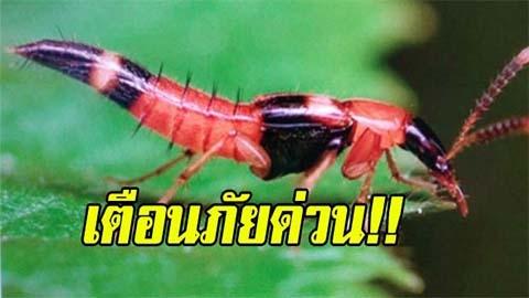 เตือนภัย!! อันตรายของ แมลงก้นกระดก โดนทีเป็นแผลพุพอง พิษแรงมาก
