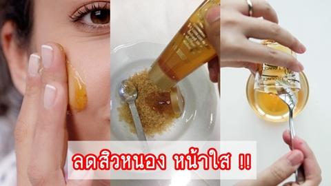 ลดสิวหนอง หน้าใส ด้วยประโยชน์ของน้ำผึ้งที่คุณอาจไม่เคยรู้มาก่อน !!