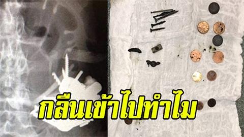 แปลกแต่จริง !! หมอตกใจหลังตรวจพบ โลหะ จำนวนมากอยู่ใน ท้องคนไข้วัย 52 ปี ตะปู ใบมีด อื่นๆ มาครบ