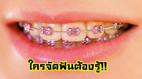 ใครจัดฟันต้องรู้!! 6 ข้อควรรู้ขณะ 'จัดฟัน'