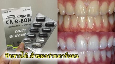 ฟันขาวได้ในราคา 25 บาท ด้วยผงถ่านคาร์บอน จาก 7-11