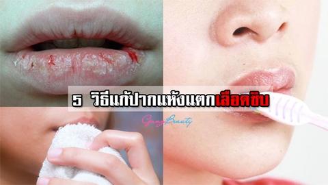 5 วิธีบำรุงดูแล แก้ปากลอก ปากแห้งแตกเลือดซิบ หายชัวร์!!