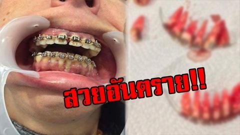 สวยอันตราย!! ภาพผลร้ายจัดฟันแฟชั่น หลุดทั้งแผง เห็นแล้วยังจะกล้าจัดกันอีกไหม!!