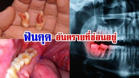 อย่ามองข้าม!! อันตรายจากการไม่ผ่าฟันคุด อาจทำให้ช่องปากเน่า เรื้อรัง!!