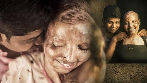 รักแท้ยังมีอยู่จริง!! หญิงสาวเหยื่อน้ำกรดสาด พบรักแท้กับชายที่เจอตอนพักรักษาตัวที่โรงพยาบาล