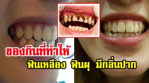 อย่าเสี่ยง! 7 ของกินอันตรายที่ทำให้ฟันเหลือง ฟันผุ มีกลิ่นปาก