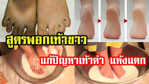 หมดปัญหาเท้าไม่สวย! ด้วยสูตรพอกเท้าขาวเนียนนุ่ม แก้ปัญหาเท้าดำ แห้งแตก ให้หมดไป