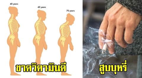 หยุดทำเถอะ !!! 7 พฤติกรรมทำร้ายกระดูก ที่เสี่ยงเป็นโรคกระดูกพรุน ก่อนวัยอันควร !!!