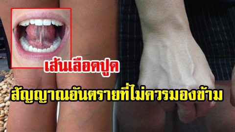 อย่ามองข้าม! เส้นเลือดขอด เส้นเลือดปูด สัญญาณอันตรายจากร่างกาย