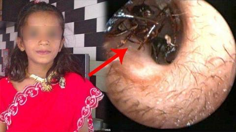 ออกมาได้ไง! สาวน้อยวัย 12 ปี มีมดคลานออกมาจากหูมากถึง 1,000 ตัว ทุกวัน!! แถมคีบเท่าไหร่ก็ไม่หมด (คลิป)