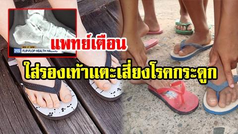 อันตรายใกล้ตัว ใส่รองเท้าเเตะ เสี่ยงโรคกระดูก เอ็นข้อเท้าอักเสบ