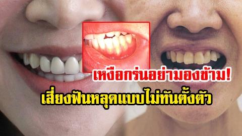 เหงือกร่น! สาเหตุของการเสียวฟัน เสี่ยงฟันหลุดแบบไม่ทันตั้งตัว