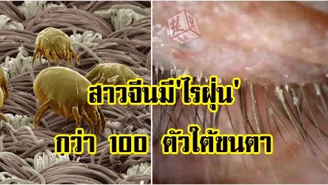 สุดทึ่ง!! สาวจีนมี 'ไร' กว่า 100 ตัวใต้ขนตา เพราะไม่ซักปลอกหมอนนาน 5 ปี!!