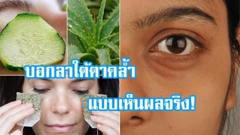 5 วิธีสุดเด็ดจากธรรมชาติ!! บอกลาใต้ตาคล้ำแบบเห็นผลจริง!!!