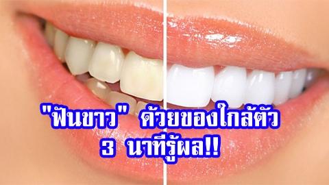 ต้องลองบ้างแล้ว!! ''ฟันขาว'' ด้วย 5 สูตรจากของใกล้ตัว 3 นาทีรู้ผล!!
