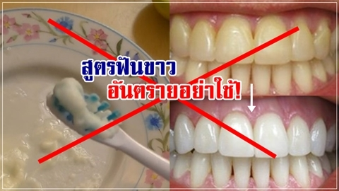 อย่าใช้!! สูตรฟันขาวด้วยเบกกิ้งโซดา อันตราย!!