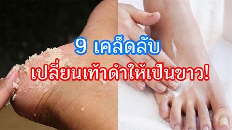 9 เคล็ดลับเปลี่ยนเท้าดำปี๋ให้เป็นขาวสวย ไม่หยาบกร้าน เนียนนุ่มสุขภาพดี!