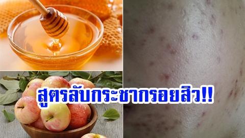 สูตรลับกระชากรอยสิว!! ด้วย น้ำผึ้ง + แอปเปิ้ล เผยหน้าเนียนใส