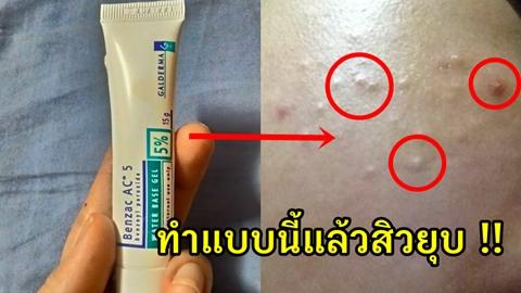 ใช้แล้วสิวไม่ยุบต้องใช้แบบนี้ !! แนะนำวิธีช่วยให้สิวหาย สิวยุบจริง ยาแต้มสิวในตำนาน