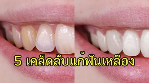 มันเริ่ดมาก! '5 เคล็ดลับแก้ฟันเหลือง' แบบธรรมชาติ ฟันขาวขึ้น ยิ้มสวยได้อย่างมั่นใจ!