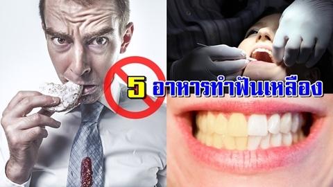 เลี่ยงโดยด่วน!! 5 อาหารที่ทานแล้วทำให้ฟันเหลือง เสี่ยงฟันผุ!!
