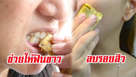 อย่าทิ้ง! สารพัดประโยชน์จากเปลือกกล้วย ที่หลายคนไม่เคยรู้