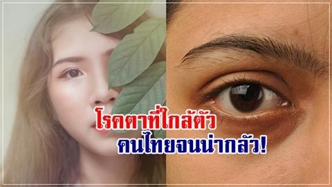 รู้ตัวกันหน่อยมั้ย!! 4 โรคตาแพร่ระบาด คนไทยเป็นกันมากไม่รู้ตัว!!