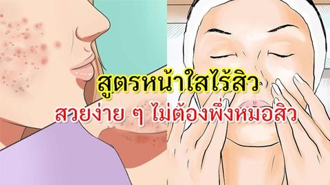 แนะนำสูตรรักษาสิวบนใบหน้าง่าย ๆ หน้าสวยใสไม่ต้องพึ่งหมอสิว !!