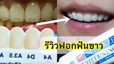 ฟันขาวทันที!! รีวิวฟอกฟันขาว ทำเองได้ที่บ้าน ภายในเวลา 20 นาที