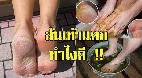 15 วิธีช่วยรักษาส้นเท้าแตก ผิวด้านแข็ง ให้เท้ากลับมาสวยเรียบเนียน !!!