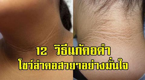 12 วิธีแก้คอดำ สาเหตุหมองคล้ำจากคราบขี้ไคล แสงแดด หรือแพ้สร้อย มีทางแก้แน่นอน !!!!