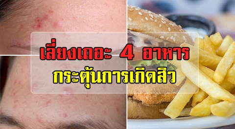 อย่าทานบ่อย !!! 4 อาหารตัวกระตุ้นการเกิดสิว ทำให้สิวไม่หายสักที !!!