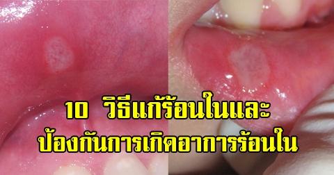 10 วิธีรักษา-ป้องกันอาการแก้ร้อนใน ในช่องปากแบบง่ายๆที่ได้ผลดี !!!