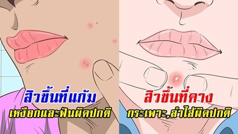 ไม่ใช่แค่สิว!! 9 จุดบนใบหน้าที่สิวขึ้น บอกความผิดปกติภายในร่างกาย