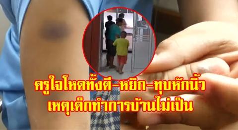แม่โวยครูสาวลงโทษลูกชาย 5 ขวบเกินกว่าเหตุ ทั้งตีทั้งหยิกช้ำทั้งตัวแถมหักนิ้วเด็ก !!!