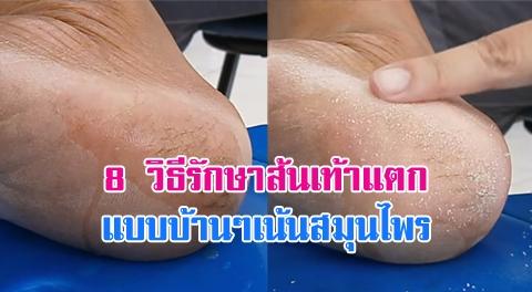 8 วิธีกำจัดปัญหา ''ส้นเท้าแตก-ผิวด้านแข็ง'' ให้กลับมาเนียนนุ่มอีกครั้ง !!!
